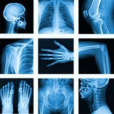 Reclassement Des Manipulatrices Et Manipulateurs En Radiologie Cgt